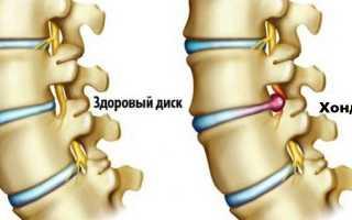 Как лечить хондроз – методы терапии шейного грудного поясничного отделов позвоночника
