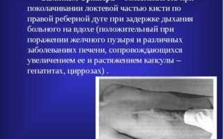 Симптомы мерфи ортнера мюсси кера. Какие заболевания позволяет диагностировать симптом ортнера