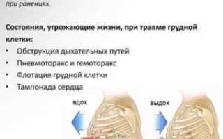 Как следует осуществлять реанимацию при переломе ребер или грудины и в каком положении транспортировать пострадавшего