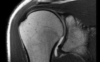 МРТ плечевого сустава: что можно обнаружить при исследовании