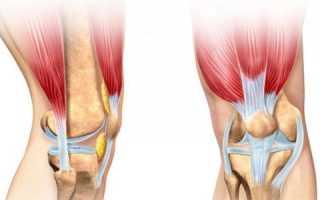 Болезни коленных суставов ног