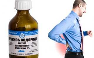 Перекись водорода для лечения суставов