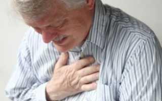 Межреберная невралгия код по мкб 10 у взрослых