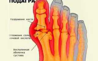Подагрический артрит стопы – какие симптомы бывают и как лечится