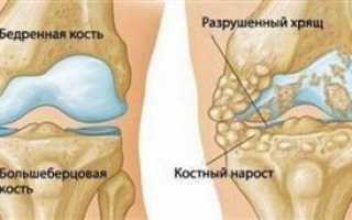 Субхондральный остеосклероз суставных поверхностей что это такое