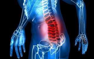 Упражнения для спины при протрузии в пояснице и вспомогательная терапия