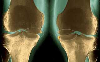 Препараты для лечения артроза коленного сустава обзор лекарств