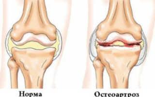 Боли в левом и правом коленных суставах по Синельникову метафизические причины