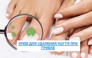 Средства и препараты для удаления ногтевой пластины пораженной грибком