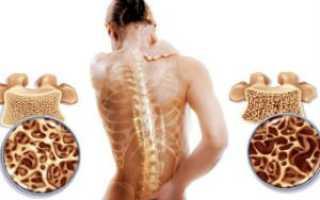 Остеопороз у женщин:причины, диагностика, профилактика и лечение
