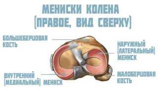 Мениск коленной чашечки фото