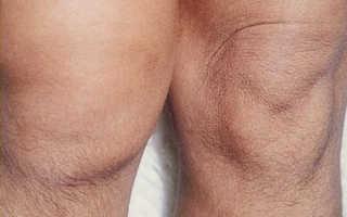 Гонартроз 3 степени как распознать Причины симптоматика лечение