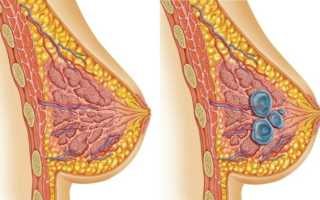 Диффузная фиброзно-кистозная мастопатия с преобладанием кистозного компонента: что это такое и как диагностируется?