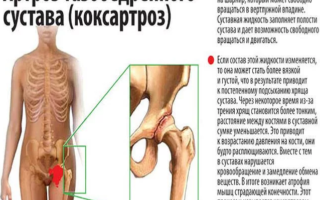 Профилактика заболеваний тазобедренного сустава — профилактика и предупреждение коксатроза
