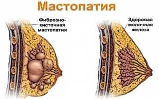 Выделения из грудных желез у женщин при надавливании желтого, белого, зеленого цвета. Причины перед месячными,