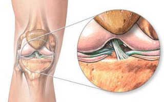Лигаментит и лигаментоз связок коленного сустава