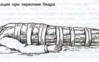 Перелом бедра фиксация суставов