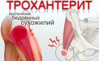 Трохантерит тазобедренного сустава – симптомы и лечение