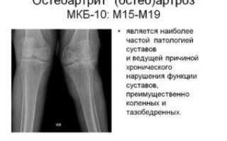 Первичный деформирующий остеоартроз мкб 10