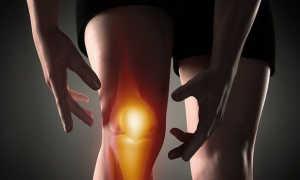 Доктор евдокименко лечение артрита