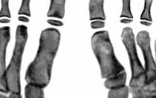 Остеохондропатия таранной кости болезнь диаса