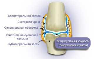 Как применять лекарство РусВиск для лечения суставов