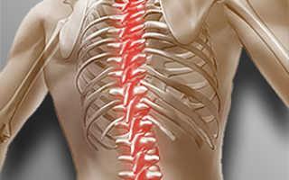 Как колоть никотиновую кислоту внутримышечно при остеохондрозе