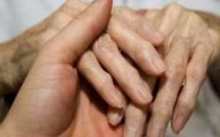 Как убрать наросты на пальцах рук