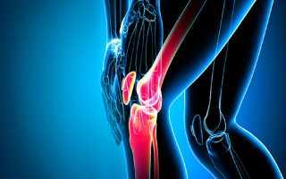 Что делать и чем лечить если хрустят колени при сгибании и разгибании без боли и