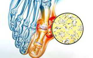 Подагрический артрит симптомы фото