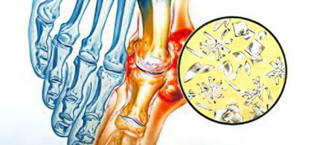 Подагрический артрит симптомы и лечение фото