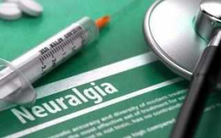 Анальгетики список лекарств при невралгии
