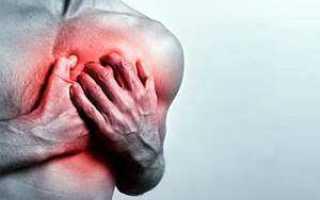 Межреберная невралгия – причины, симптомы и лечение