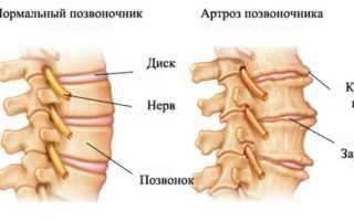 Остеоартроз позвоночника – лечение, симптомы