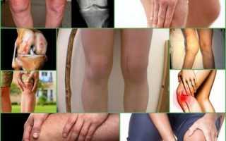 Коксартроз коленного сустава симптомы и лечение препараты