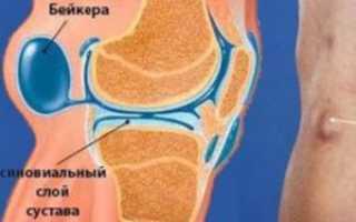 Киста бейкера коленного сустава пункция