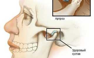 Зубная боль в суставах