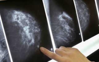 Что такое микрокальцинаты в молочной железе и их лечение