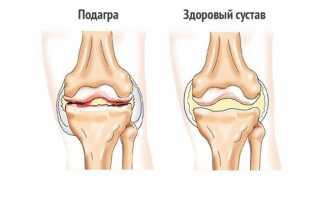 Чем отличается артрит от полиартрита: симптомы