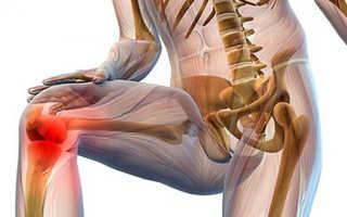 Как лечить коленные суставы в домашних условиях
