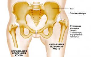 Недоразвитость тазобедренных суставов у грудничка