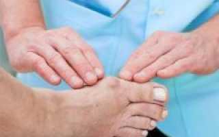 Что делать при обострении подагры медикаментозное лечение и ножные ванны