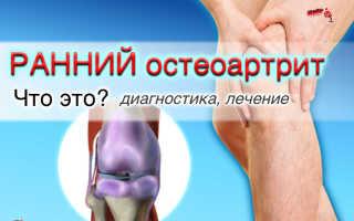 Остеоартрит классификации причины симптомы лечение
