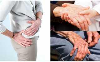 Полиартроз симптомы и лечение народными средствами