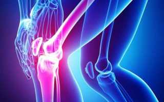 Жидкостная структура в нижнем завороте коленного сустава