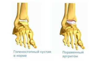 Артрит реактивный голеностопного сустава