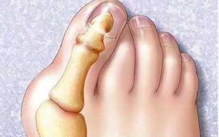 Лечение косточек на больших пальцах ног в домашних условиях