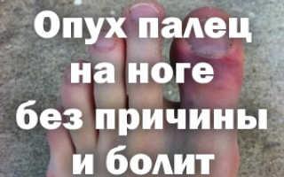 Палец воспалился и опух что делать. Что делать если палец на ноге распух и покраснел