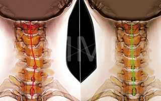 Сколиоз шейного отдела позвоночника – лечение, диагностика, левосторонний