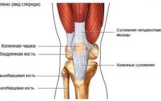 Лечение вывиха коленного сустава: как вправить, причины и признаки, код МКБ-10. Симптомы вывиха коленного сустава